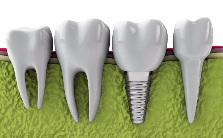 implante-plastico